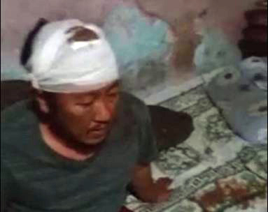 A Tibetan youth who suffered a gash on his head. (Photo courtesy: Phayul)