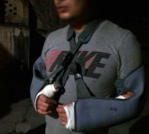 A Tibetan youth whose both hands were fractured after being beaten by local indians on Feb. 27, 2018. (Photo courtesy: Phayul)
